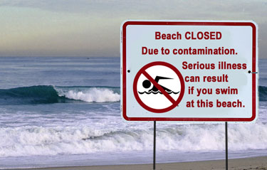 1016 Beach Closed