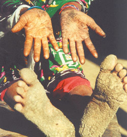 Leasions on hands and feet showing arsenic toxicity